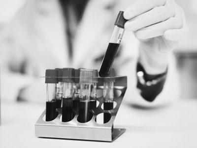 Des recherches en cours à l'IPC pour utiliser la «biopsie liquide» dans le monitoring de l'ADN  des cancers du sein